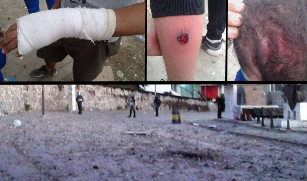 De violentes émeutes ont fait plusieurs blessés à Larevɛa Nat Yiraten