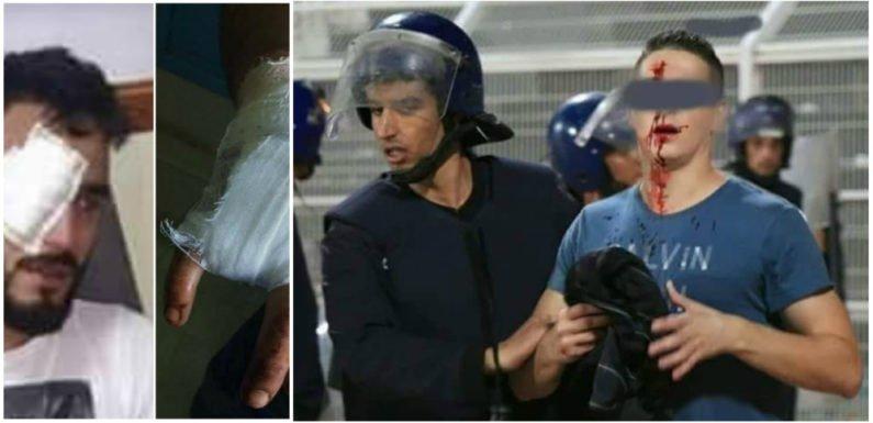 Le MAK et l'Anavad condamnent l'agression des supporters de la JSK
