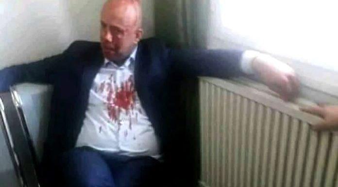JSK : Cherif Mellal agressé à l'arme blanche