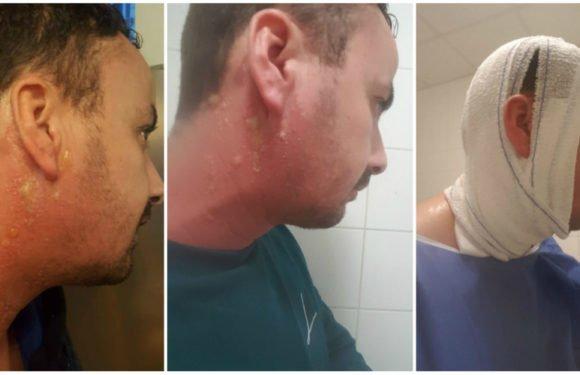 Un kabyle attaqué à l'acide par des algériens lors d'une manifestation à Paris